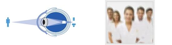 Astigmatismo y su tratamiento en CORRECCIÓN VISUAL LÁSER Aguascalientes, Corrección de Errores Refractivos en Aguascalientes, Líderes en Corrección Visual con Láser en Aguascalientes, Examen Visual y Salud Ocular